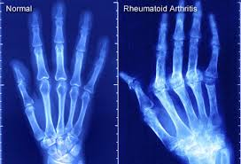 reumathoid